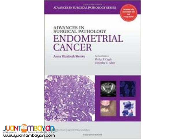 Advances in Surgical Pathology: Endometrial Carcinoma