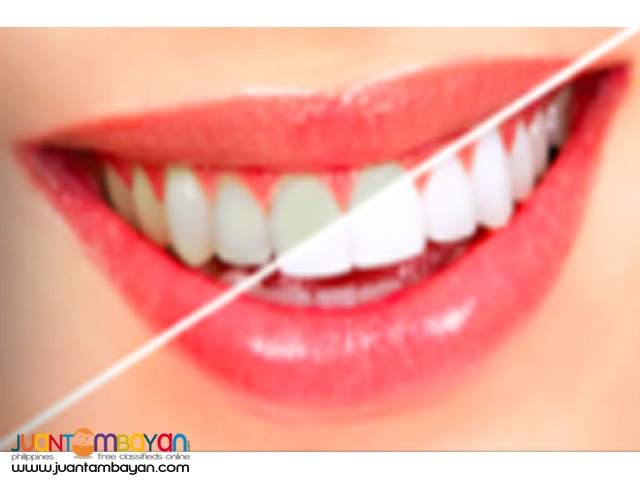 50% OFF DISCOUNT ON TEETH WHITENING SERVICE - POLISH WHITE