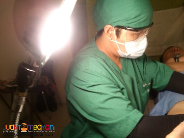 Genital Warts Removal Clinic in Quezon City