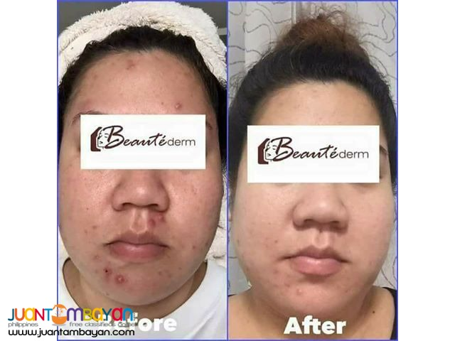 Beautederm Regular Set / Facial Set / Anti-pimple Set