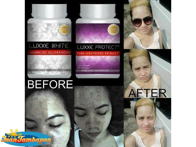 Luxxe White, Slim, Renew, Protect - Luxxe Products - Glutathione